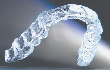 contention transparente de type Invisalign à Paris