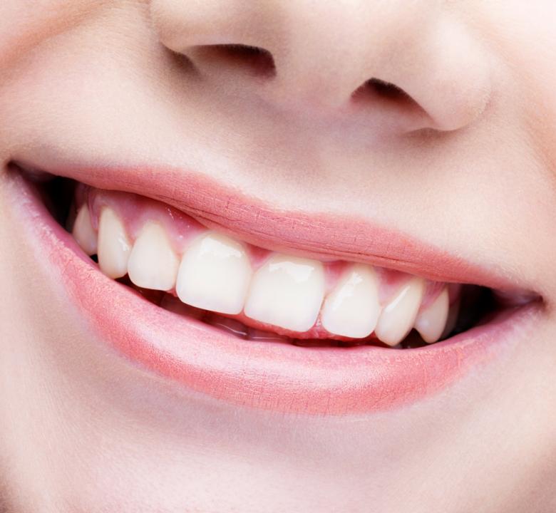 Sourires en orthodontie