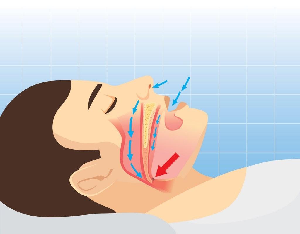 Apnee du sommeil - schema medical