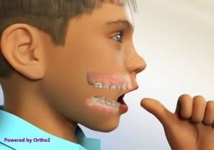 Orthodontie et succion du pouce