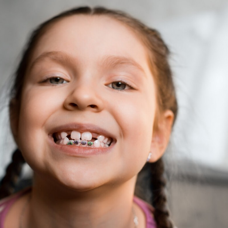 Traitement interception en orthodontie enfant