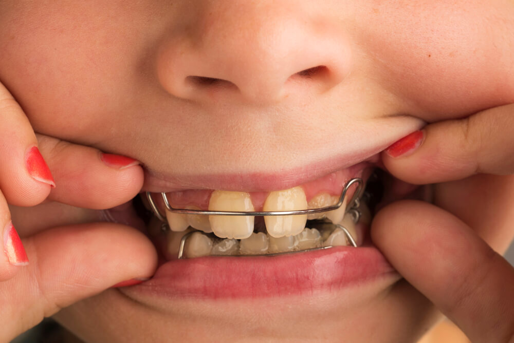interception en orthodontie enfant