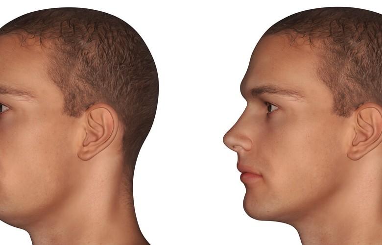 Chirurgie maxillo-faciale et Orthodontie