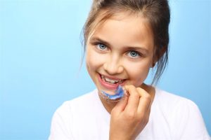 Traitement interception orthodontie paris 17
