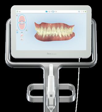 scanner iterro empreinte dentaire numérique paris