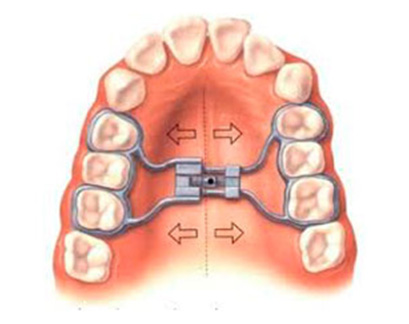 hyrax : appareil d'expansion de la machoire orthodontiste paris 17