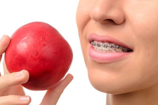 Alimentation à adopter lors d'un traitement orthodontique Paris