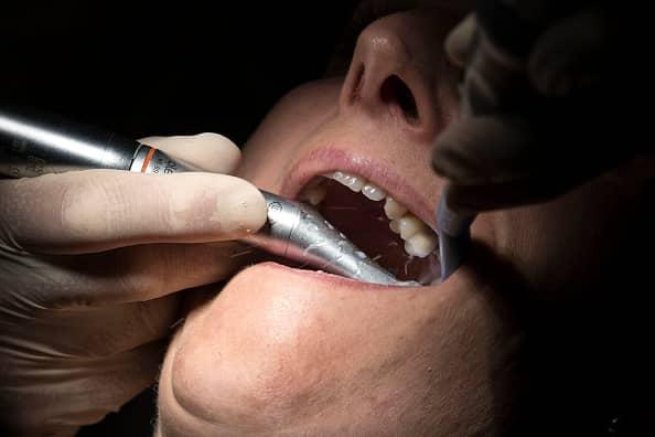 Le Dr Ohana Chpindel propose la chirurgie orthognatique Paris 17