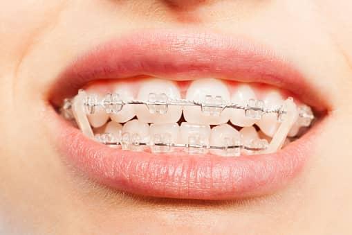 Cabinet dentaire Dr Ohana Chpindel Elastique dentaire paris
