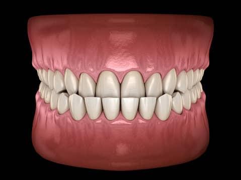 Le Dr Ohana Chpindel corrige vos anomalies Classe 3 orthodontiste paris