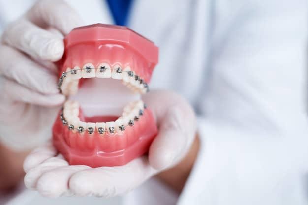 Votre orthodontiste paris propose des solutions pour les supraclusion