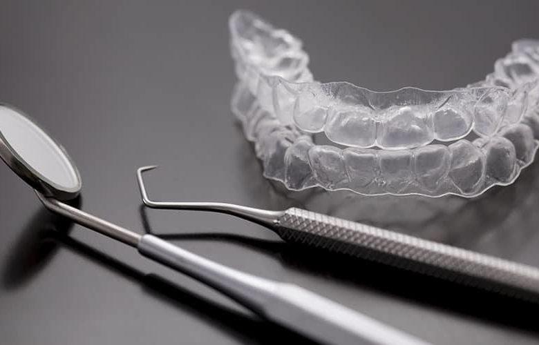 Les différents traitements orthodontiques Paris 17