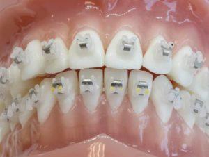 Traitement orthodontique déplacement des dents Paris