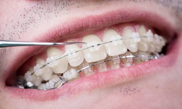 Pourquoi se lancer dans un Traitement orthodontique Paris