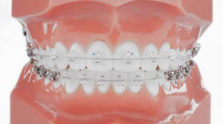 Anomalies dentaires de classe 2