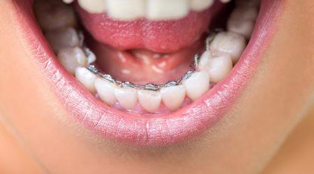 Orthodontie linguale à Paris