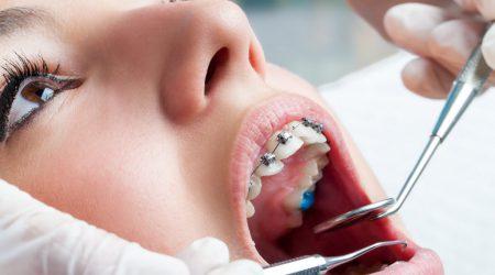 Traitement orthodontique, orthodontie paris, pose appareil dentaire metallique