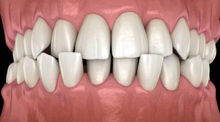 Votre orthodontiste Paris corrige vos anomalies dentaires