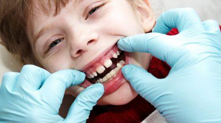 Traitement en orthodontie fonctionnelle a Paris
