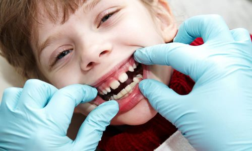 Traitement en orthodontie fonctionnelle a Paris
