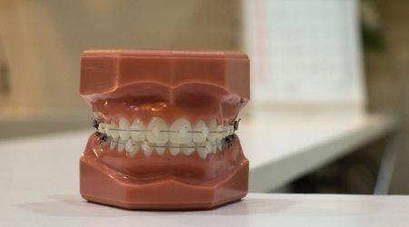 Appareil dentaire céramique comme traitement pour vos dents