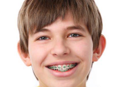 orthodontie enfant et adolescent Paris