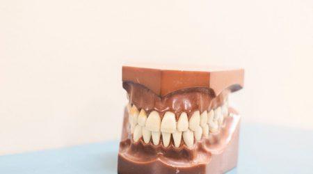 Le Docteur Ohana propose la pose d'élastiques orthodontiques