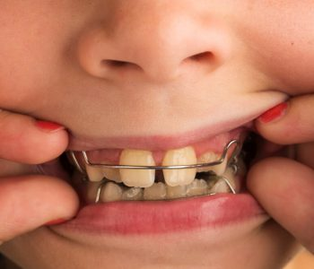 interception en orthodontie enfant