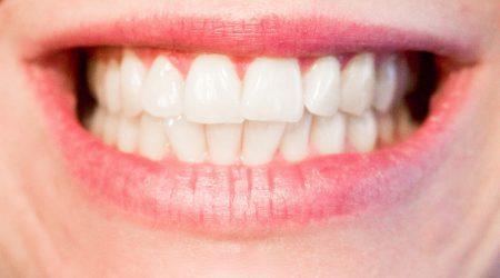 Traitement orthodontie à Paris